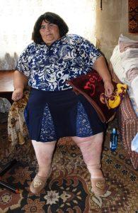Übergewichtige kranke Frau sitzt in einem Sessel